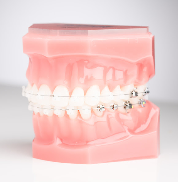 self-ligating-ceramic-braces.jpg